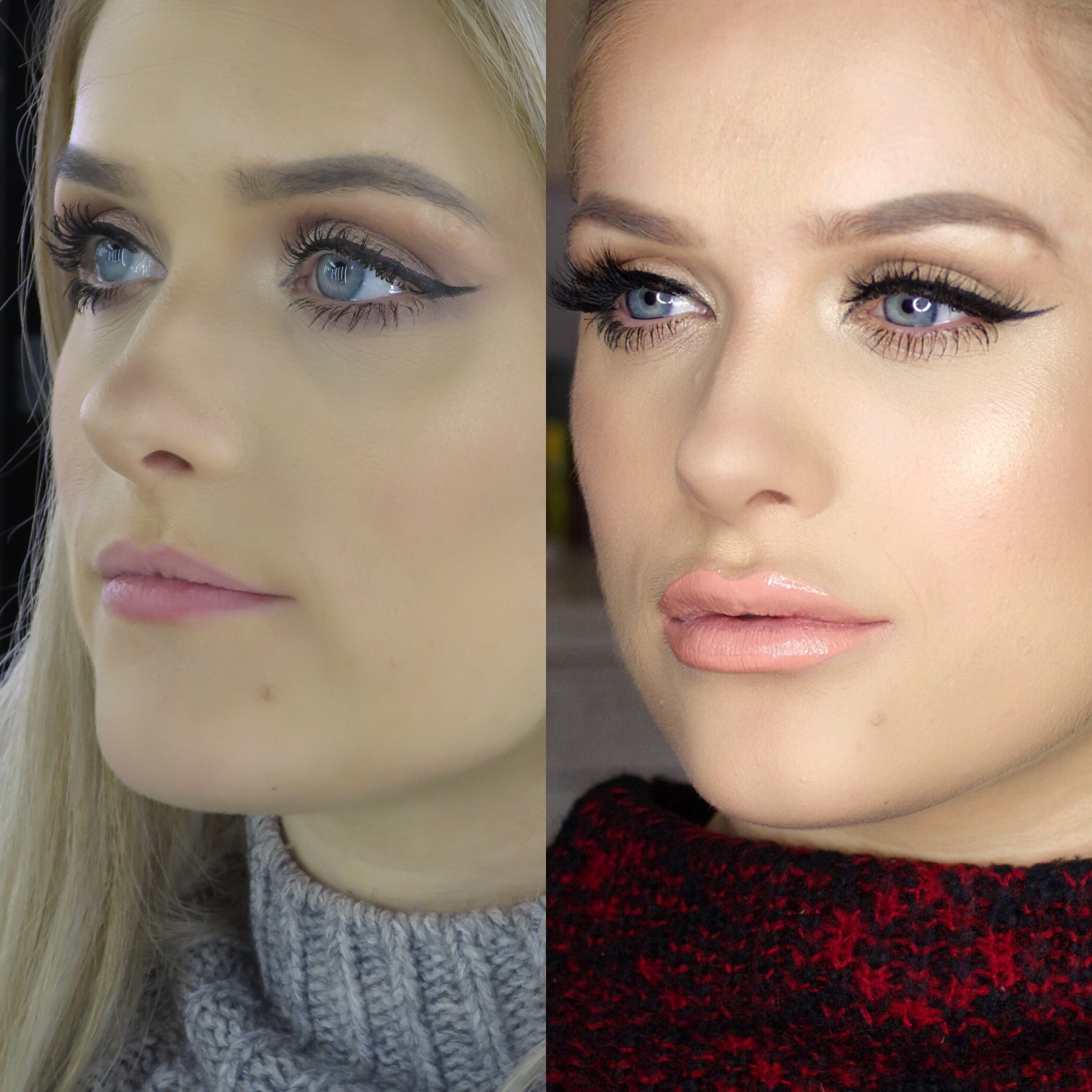 Lip Injections Before And After 1 Syringe